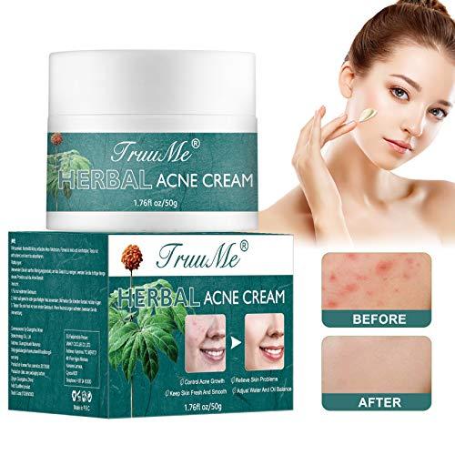 Akne Creme, Acne Treatment Cream, Akne Entferner...